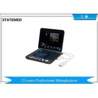Buy cheap Black And White Laptop Portable Ultrasound Scanner For Diagnostic from Wholesalers