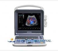 Buy cheap Hospital 3D/4D Color Doppler Portable Ultrasound Scanner Digital ultrasonic machine from Wholesalers