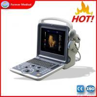 Buy cheap Latest Design Portable Style Cardiac Color Doppler Ultrasound Scanner Yj-U60plus from Wholesalers