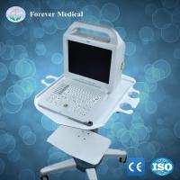 Buy cheap B/W Human Hospital Patient Veterinary Ultrasound Scanner Ultrasonic Scanner (YJ-U100B) from Wholesalers